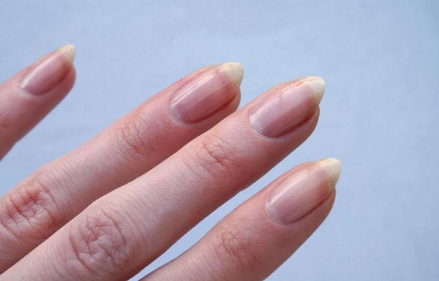 gel rovina le unghie