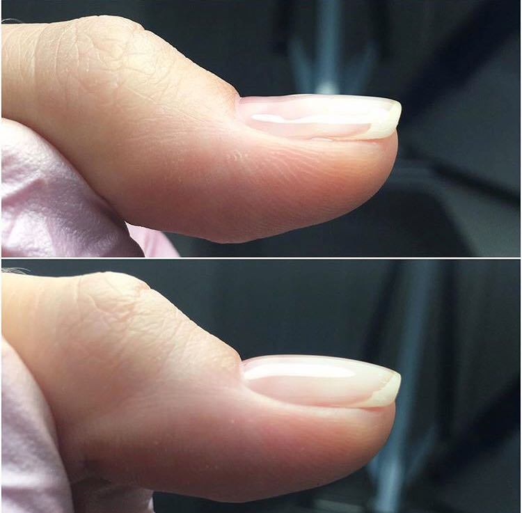 il gel rovina le unghie