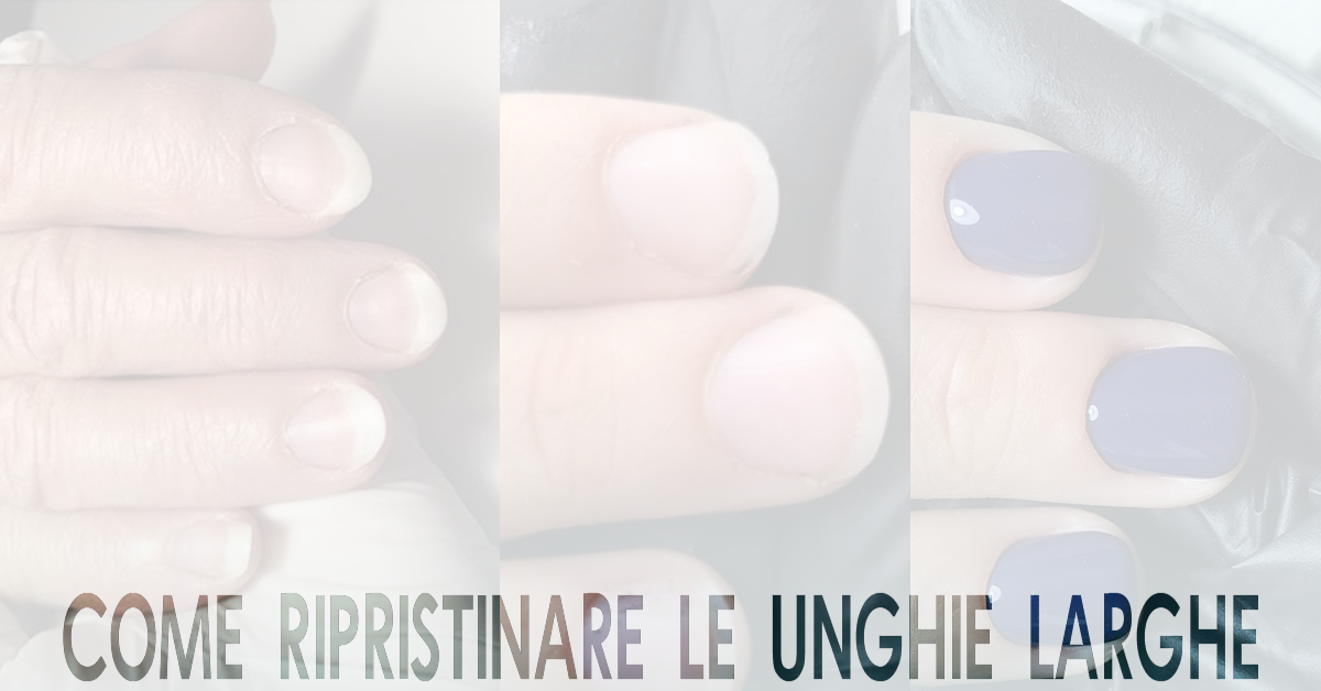 Unghie larghe e piatte: consigli e rimedi per le unghie a ventaglio