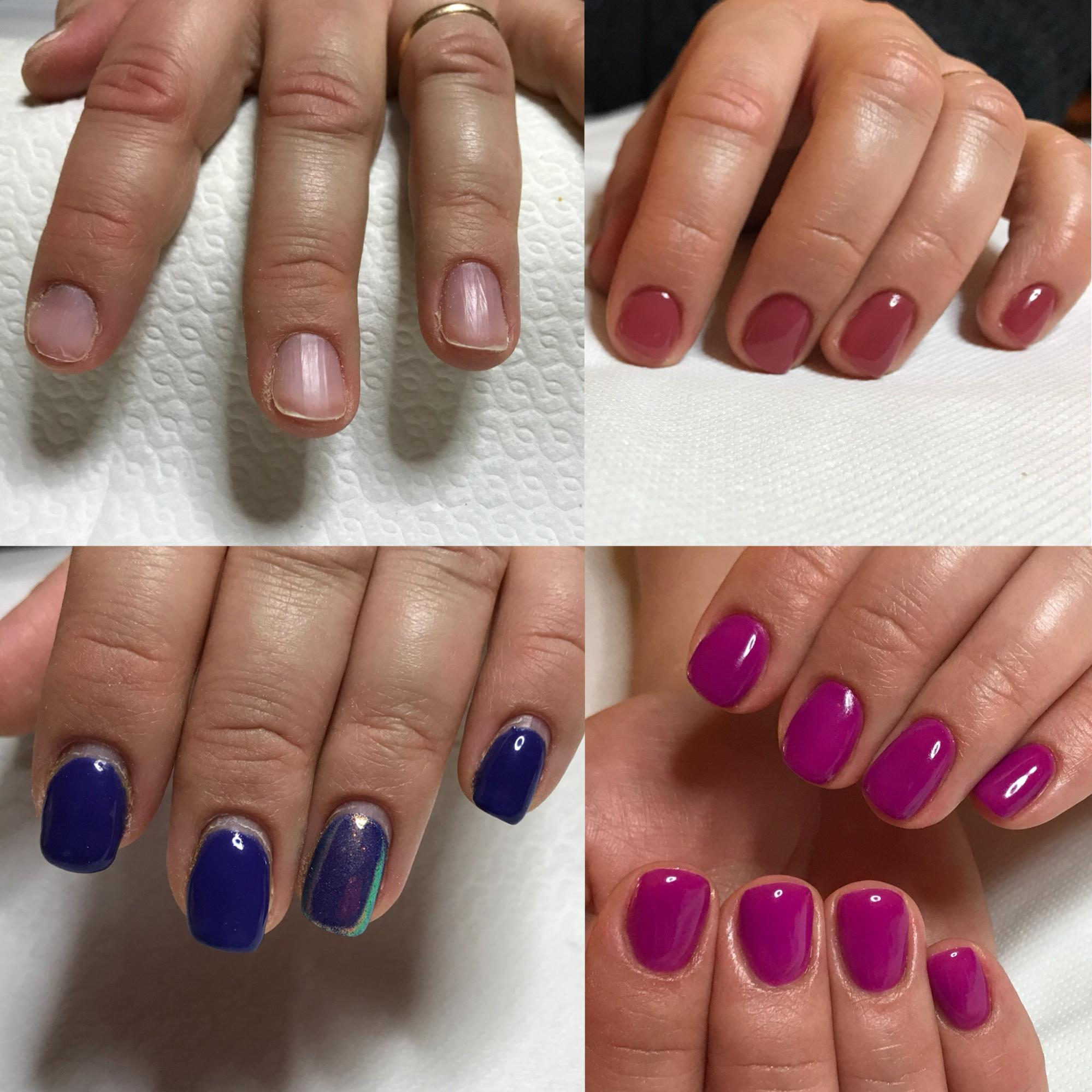 unghie fragili che si sfaldano soluzione onicotecnica