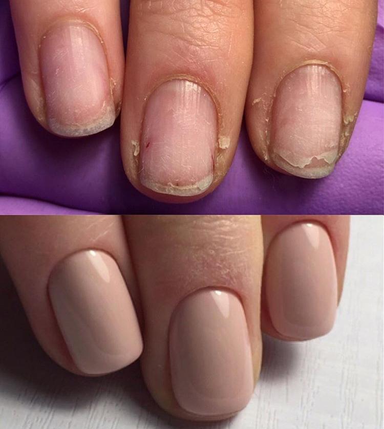 unghie fragili che si sfaldano come curarle